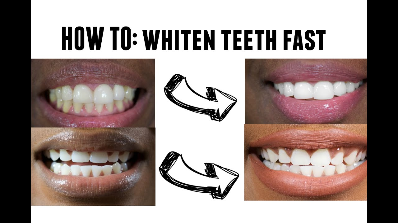 How To Whiten Teeth Very Fast At Home Youtube
