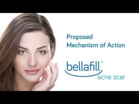 Bellafill for Acne Scars