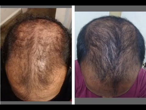 Reverse Male Pattern Baldness Naturally