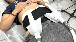 HI-EMT Muscle Sculpting Training