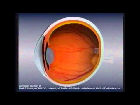 Retinal Implants