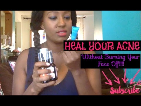 hqdefault - Acne Treatment For People Allergic To Benzoyl Peroxide