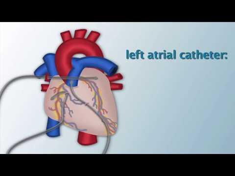 """post-operative-invasive-cardiac-monitoring""-by-dorothy-beke,-rn-for-openpediatrics"