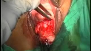 vaginal hysterectomy,previous Fothergill's repair ,prolapse uterus, dr c v hegde ,mumbai ,india.wmv