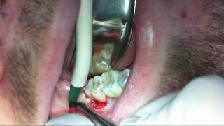 Surgical Extraction of a Mesioangular Impacted Third Molar 48