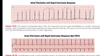 Ventricular fibrillation ( VF or V fib ) part 1 of 3 causes, symptoms & pathophysiology.