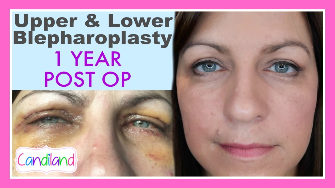 BEFORE & AFTER BLEPHAROPLASTY SURGERY - 8 YEAR POST OP
