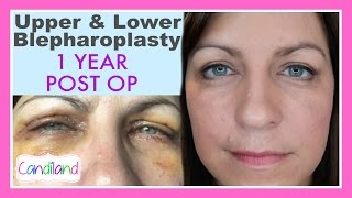 BEFORE & AFTER BLEPHAROPLASTY SURGERY - 1 YEAR POST OP