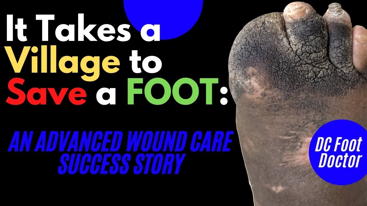 It Takes A Village To Save A Foot: An Advance Wound Care Success Story