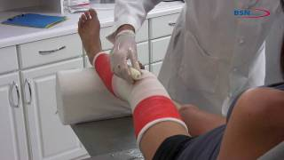 Synthetic casting knee application EN by BSN medical mov