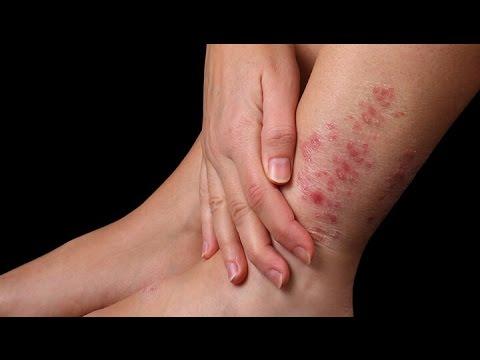 Как быстро вылечить кожное заболевание