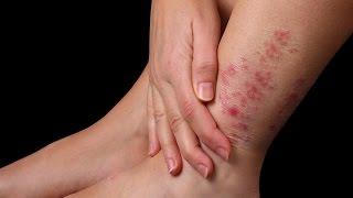 Як швидко вилікувати шкірне захворювання
