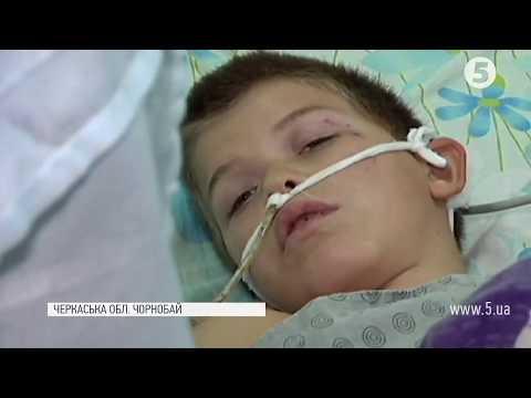 Однокласники побили 8-річного школяра на Черкащині - дитина в реанімації