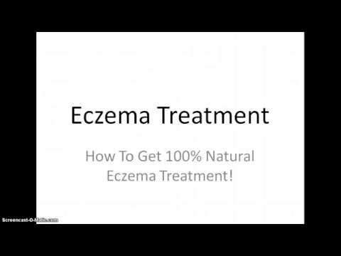 Eczema Treatment 100% Natural