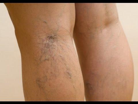 Варикоз вен на ногах: лечение, народные средства 49