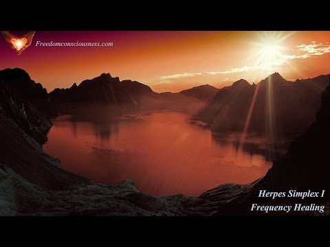 Powerful Herpes Simplex 1 Frequency and Energy Healing - Heal Herpes Naturally