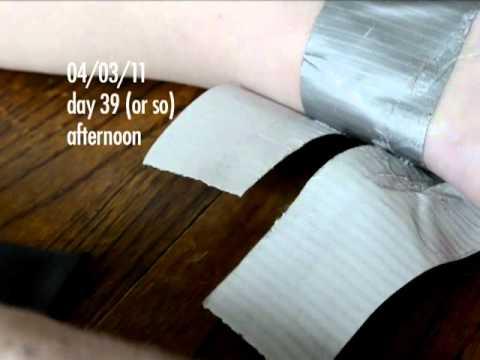 botfly larva in my ankle - days 38-39 update - final update!