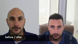 Hair transplant before after, FUE Hair transplant