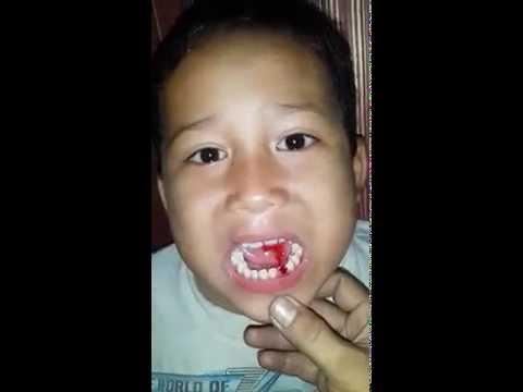 abin cabut gigi