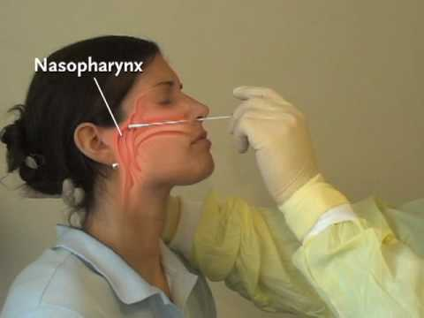 NEJM Procedure: Collection of Nasopharyngeal Specimens with the Swab Technique