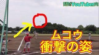 【投球障害イップス】向ピッチャーへの返球すら困難に・・・ thumbnail