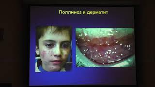 видео Хламидийный конъюнктивит – симптомы и лечение у взрослых