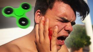 FIDGET SPINNER ACCIDENT ON BOYFRIEND!