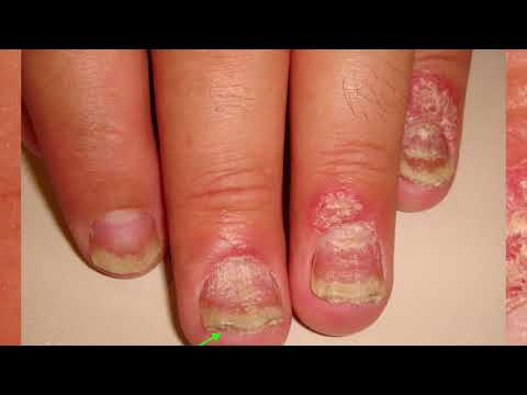 Псориаз ногтей: фото на руках и ногах, ногтевой грибок