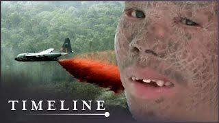 Children Of Agent Orange (Vietnam War Documentary) | Timeline