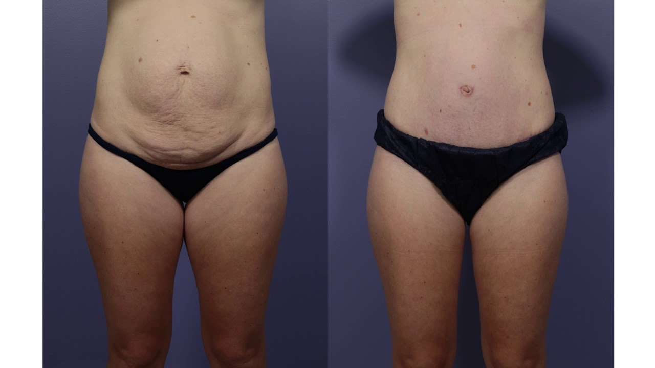 Tummy Tuck in Los Angeles | Abdominoplasty Specialist | Dr  David Stoker
