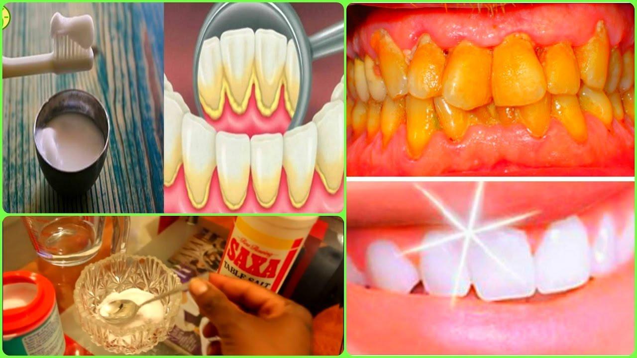 remède contre le tartre dentaire