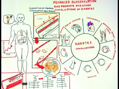 Advanced Glycosylation End Products and Diabeteic complications
