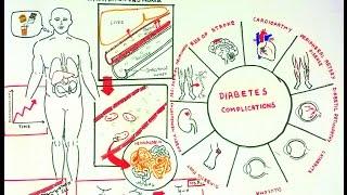 ovretveit j evaluando intervenciones de salud para la diabetes