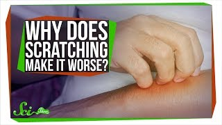 Why Does Scratching Make Itching Worse?