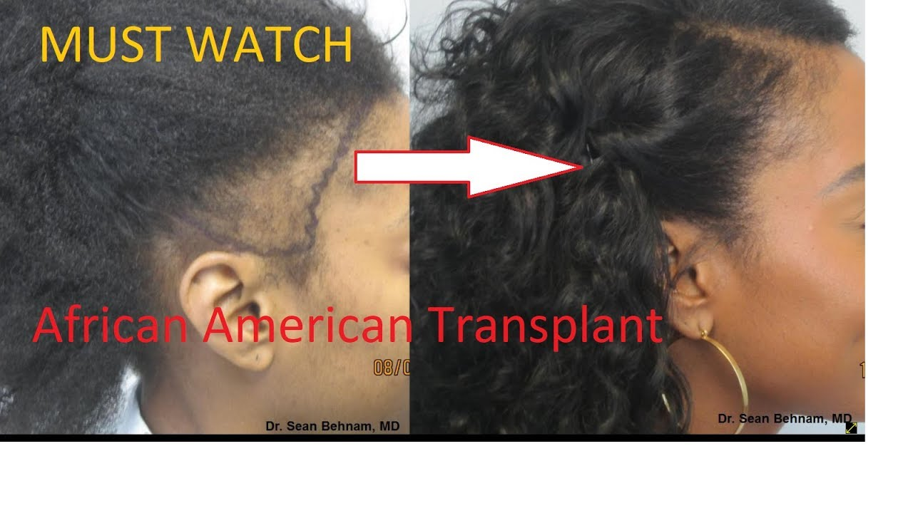 African American Hair transplant and Hair Restoration In Los Angeles