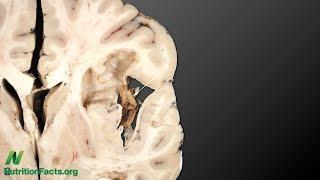 Jak se pomocí stravy vyhnout epilepsii