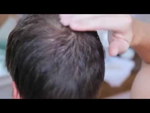 Rogaine for Men Hair Regrowth Treatment Review 2015 + Discount link