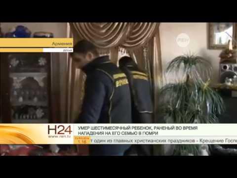 В Гюмри умер шестимесячный ребенок, раненый во время нападения на его семью