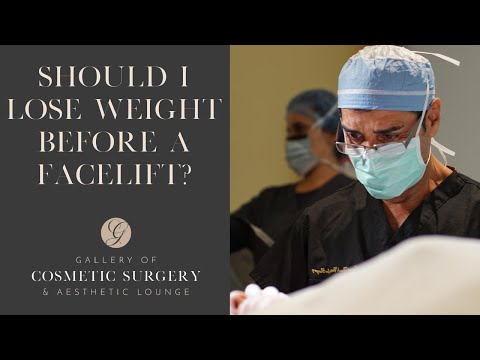 Should I Lose Weight Before a Facelift?
