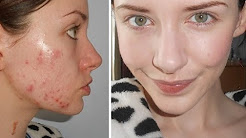 hqdefault - Green Tea Causes Cystic Acne