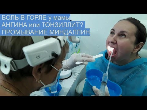 VLOG ПРИЁМ У ВРАЧА / АНГИНА или ТОНЗИЛЛИТ/ПРОМЫВАНИЕ /ЛАЗЕР