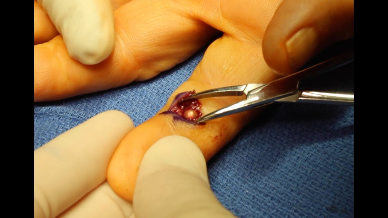 Live Surgery: Foreign Body (BB) Removal from Finger - YouTube