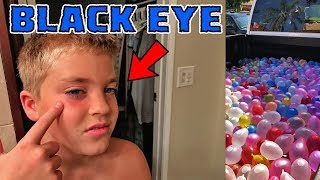 KID GETS BLACK EYE FROM 2000 WATER BALLOON FIGHT