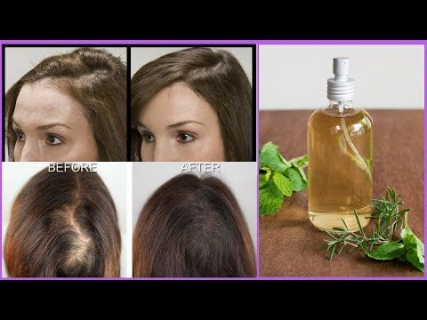 Hair Growth Spray for Reducing Hair Fall & for Promoting Hair Growth | Visible Results in 7 Days