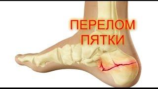 ПЕРЕЛОМ ПЯТКИ/Перелом пяточной кости Скорая помощь/переломы костей