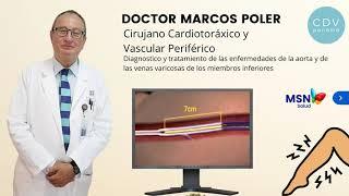 Tratamiento de las varices del tipo araña, por el doctor Marcos Poler