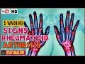 5 WARNING SIGNS AND SYMPTOMS OF RHEUMATOID ARTHRITIS