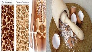 Descubre Los 4 Remedios Naturales Más Efectivos Para La Osteoporosis