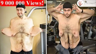 Weight Loss ~Their Transformation after Loose Skin Removal! ~ Body Bizarre! Part1