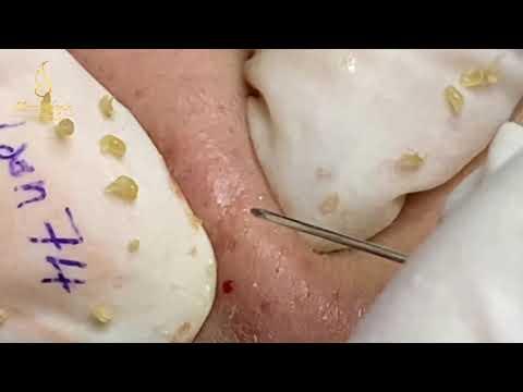 Effective Acne Treatment (74) | Loan Nguyen